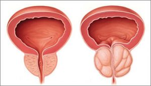 A diagram showing the differences of an enlarged prostate and a normal one